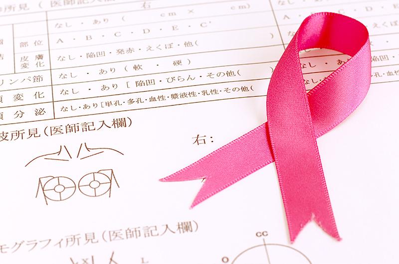 早期発見のために定期的な乳がん検診を